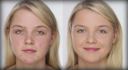 девушка без макияжа с пятнами после прыщей и после макияжа